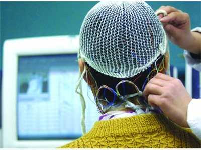 继发性癫痫病可以治愈吗 怎么才能治愈呢