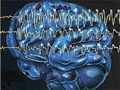 癫痫病发作怎么治疗 药物治疗癫痫发作效果好