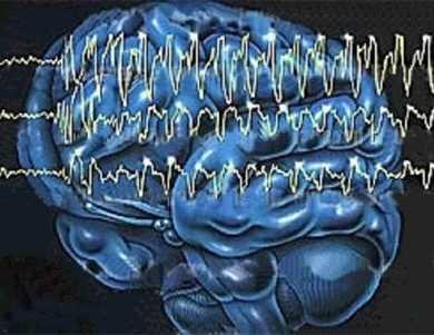 癫痫病的治疗方法有哪些  介绍治疗癫痫病有效果的方法
